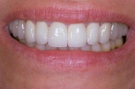 Sorriso dopo di un trattamento di igiene orale presso Centri Smile