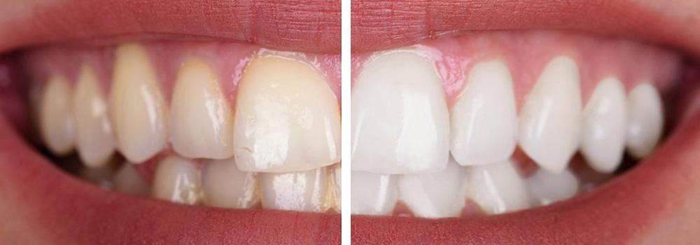 Prima e dopo un trattamento di estetica dentale presso uno dei Centri Smile a Milano