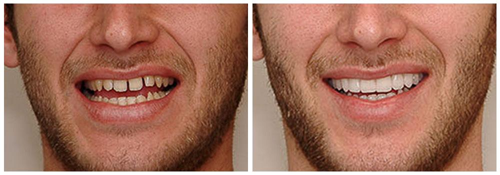 Fotografia di prima e dopo un trattamento di estetica presso i Centri Smile