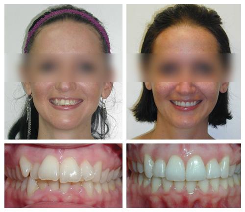 Ragazza prima e dopo un trattamento di ortodonzia presso i Centri Smile