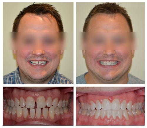 Esempio di dentature prima e dopo i trattamenti professionali dei Centri Smile