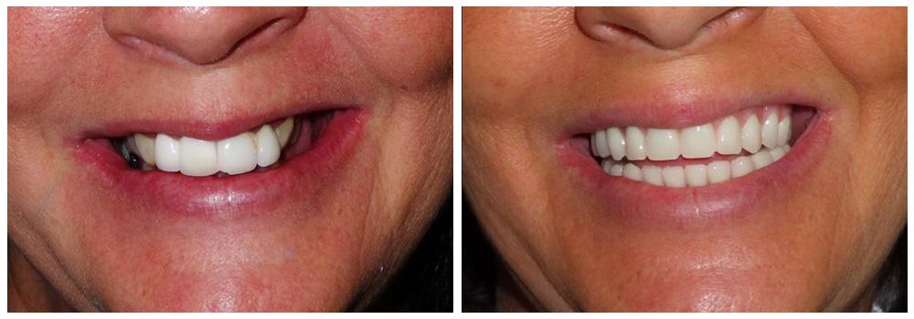 Fotografia del sorriso di una donna prima e dopo un trattamento di implantologia presso i Centri Smile