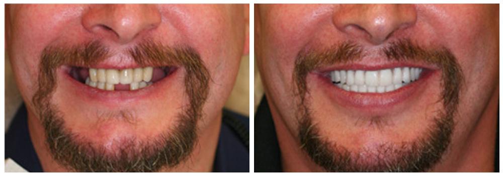 Fotografia del sorriso di un uomo prima e dopo un trattamento di implantologia presso i Centri Smile