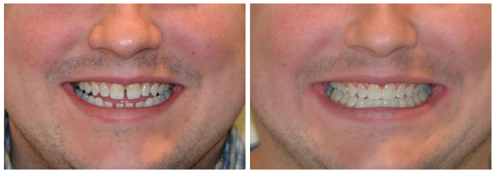 Fotografia dei denti di un ragazzo prima e dopo un trattamento di ortodonzia presso i Centri Smile