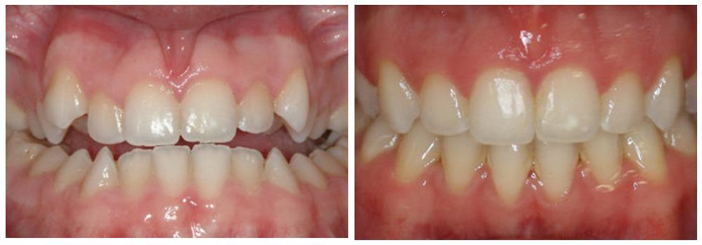 Fotografia di denti prima e dopo il trattamento di ortodonzia presso i Centri Smile