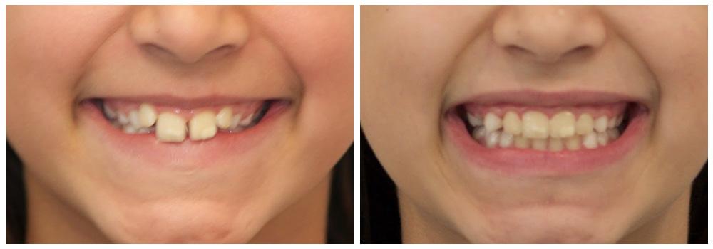 Ragazzo prima e dopo il trattamento di odontoiatria pediatrica ricevuto presso uno dei Centri Smile di Milano e Bollate