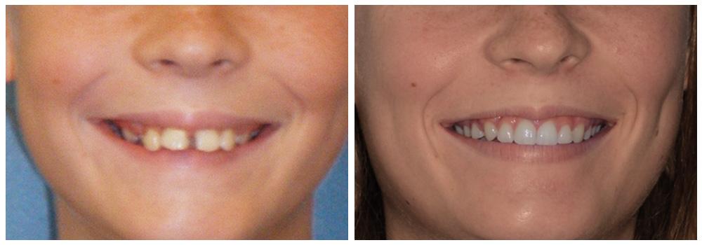 Ragazza prima e dopo il trattamento di odontoiatria pediatrica ricevuto presso uno dei Centri Smile di Milano e Bollate