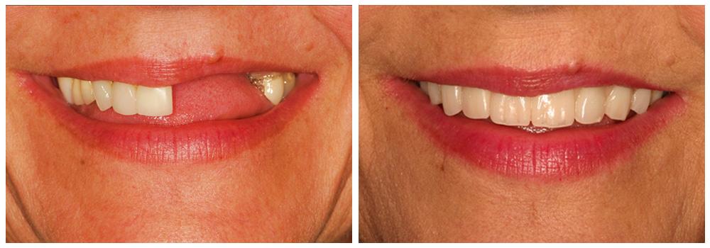 Fotografia della bocca di una donna prima e dopo un trattamento con protesi fisse e mobili presso i Centri Smile di Milano e Bollate