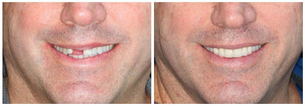 Fotografia della bocca di un uomo prima e dopo un trattamento con protesi fisse e mobili presso i Centri Smile