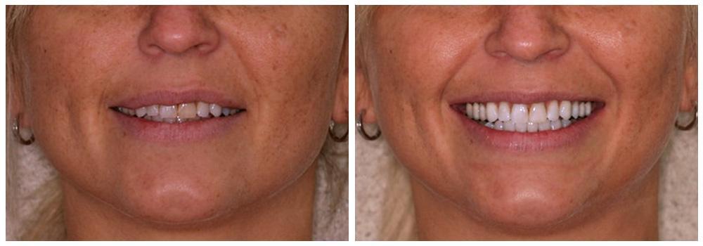 Fotografia di prima e dopo un trattamento di sbiancamento presso i Centri Smile