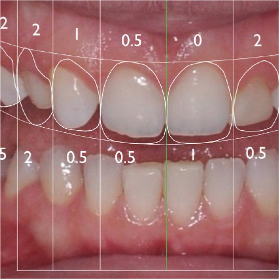 Fotografia rappresentante un esempio di digitalizzazione del sorriso dei centri Smile
