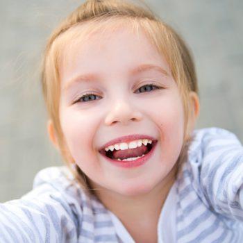 Bambina sorridente dopo un trattamento di ortodonzia fissa in metallo su 2 arcate realizzata presso i Centri Smile