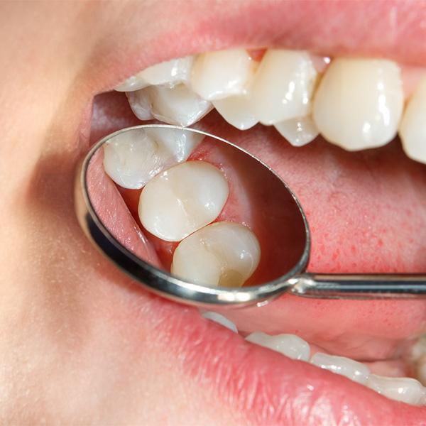 Fotografia rappresentante l'utilizzo da parte di un dentista dei Centri Smile di uno specchietto classico utilizzato in odontoiatria