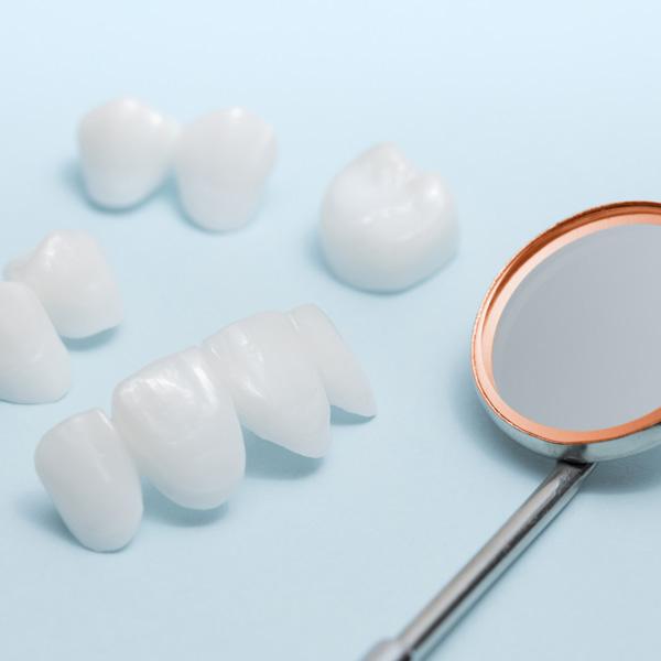 Tipici strumenti per trattamenti di estetica presso i Centri Smile: faccette estetiche e specchietto classico del dentista