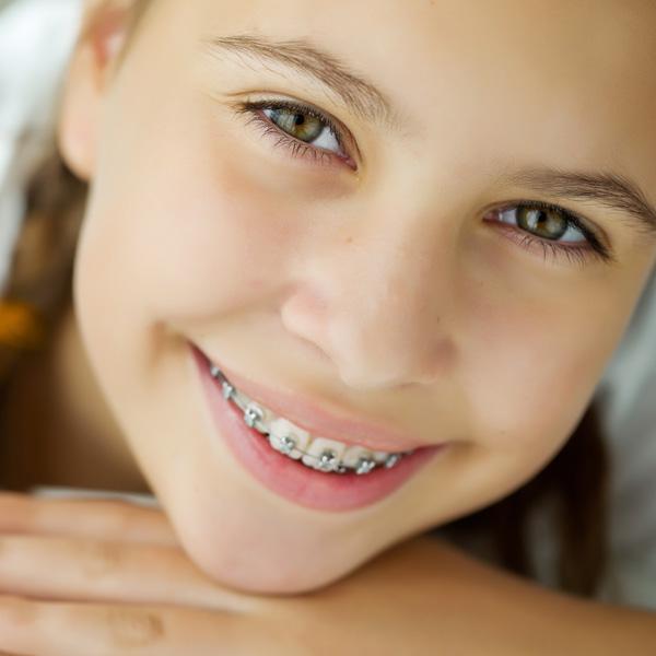 Fotografia rappresentante una bambina sorridente con l'apparecchio montato durante un trattamento degli esperti presso i Centri Smile
