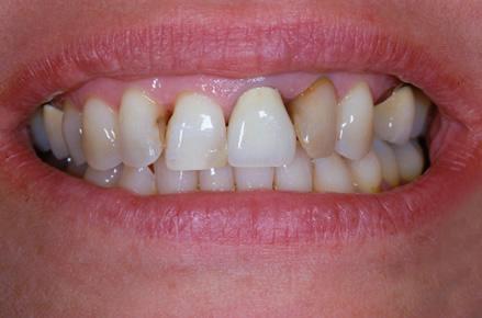 Fotografia rappresentante un sorriso prima del trattamento di igiene orale presso i Centri Smile
