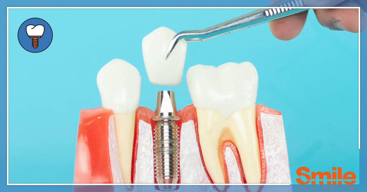 SMILE-Blog-Implantologia-Cosa-È-Impianto-Guida-1200x630.jpg