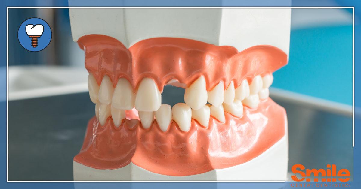 SMILE-Blog-Implantologia-Perchè-Impianti-Soluzione-1200x630.jpg