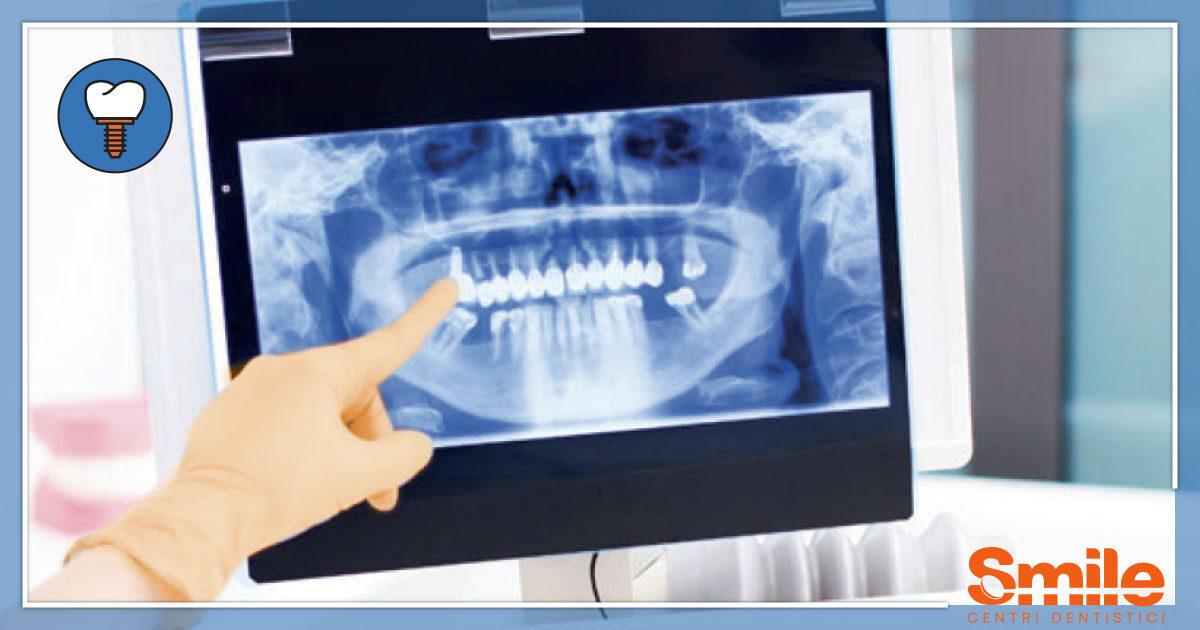 SMILE-Blog-Implantologia-Senza-Osso-1200x630.jpg