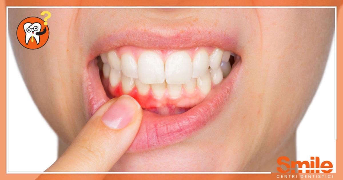 SMILE-Blog-Odontoiatria-Gengivite-1200x630.jpg