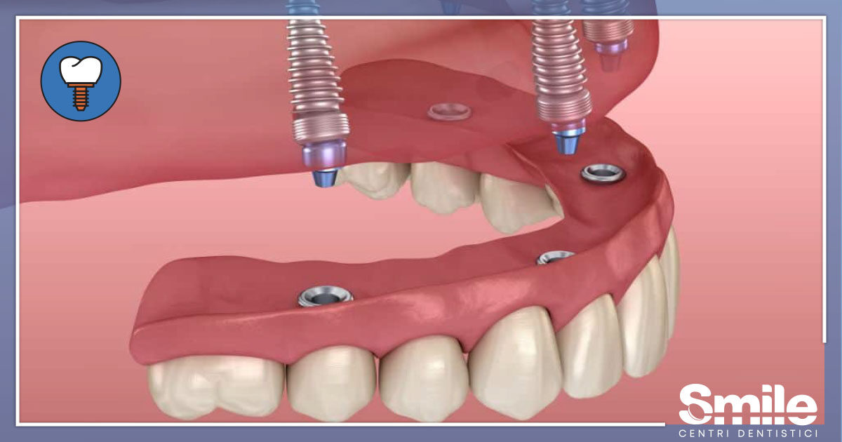 SMILE-Blog-Implantologia-Carico-Immediato-1200x630.jpg