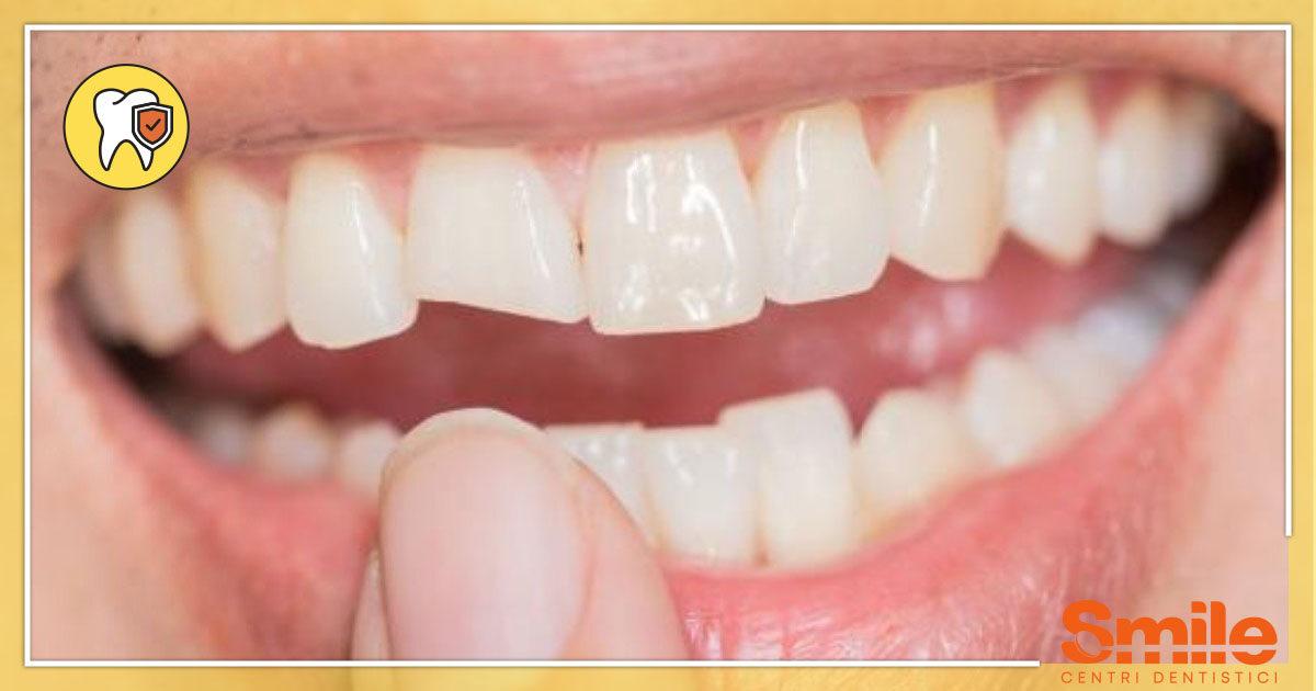 SMILE-Blog-Odontoiatria-Conservativa-Dente-Rotto-Spezzato-1200x630.jpg